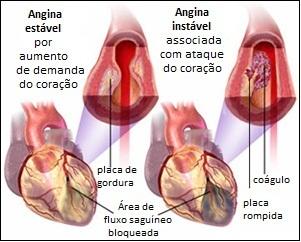 quais os sintomas de uma angina pectoris